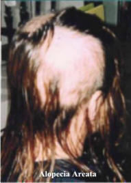 Alopecia Areata is usually a temporary condition.
