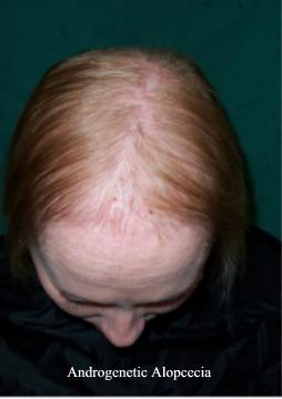 Androgenetic or Androgenic Alopecia occurs in one out of five women.