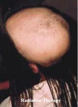 Chemotherapy and radiation therapy often result in partial or total hair loss.